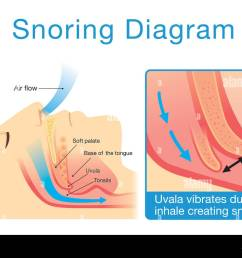 anatomy of human upper airway while sleeping with snoring stock image [ 1300 x 994 Pixel ]