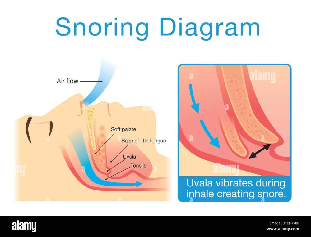 medium resolution of anatomy of human upper airway while sleeping with snoring stock image