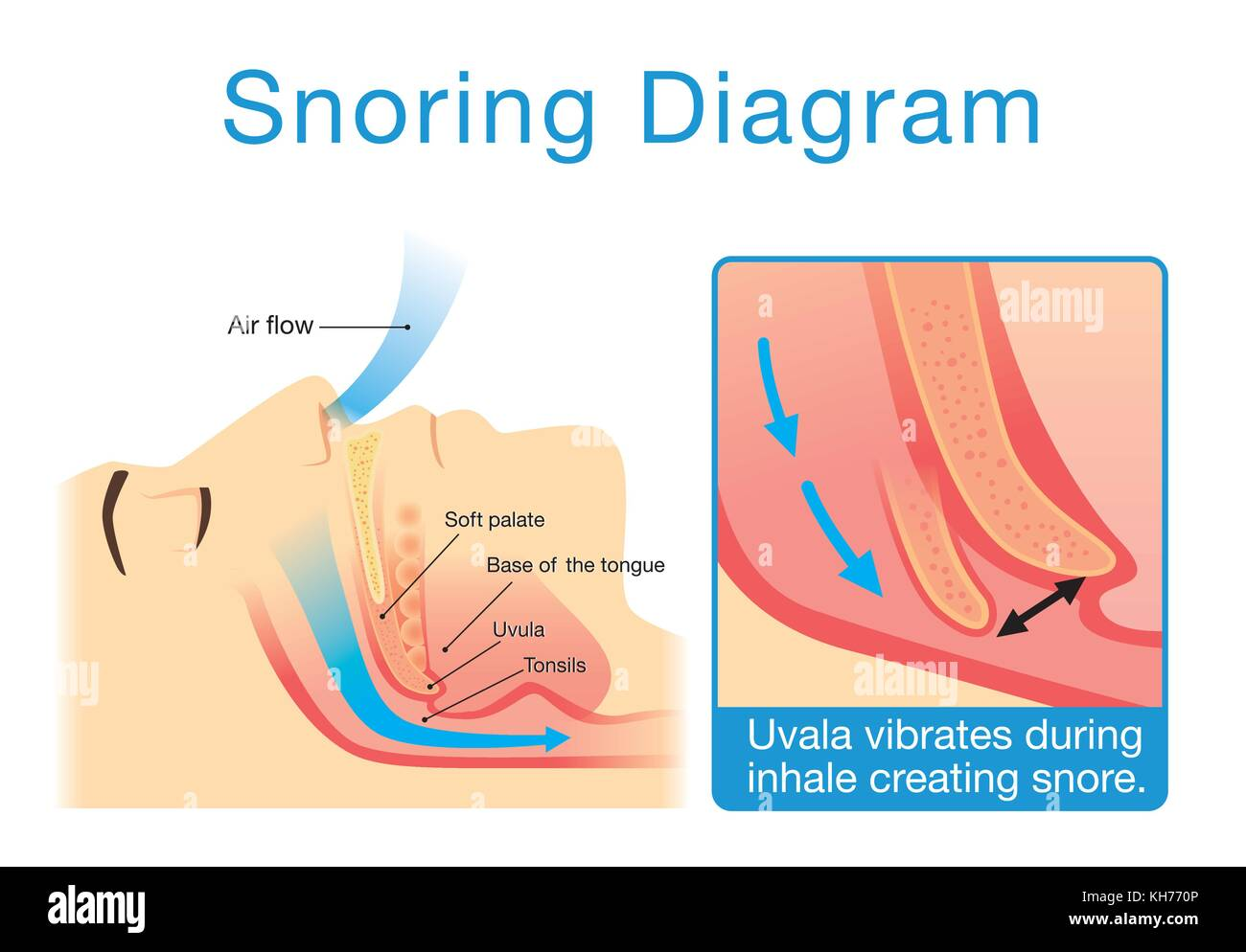 hight resolution of anatomy of human upper airway while sleeping with snoring stock image
