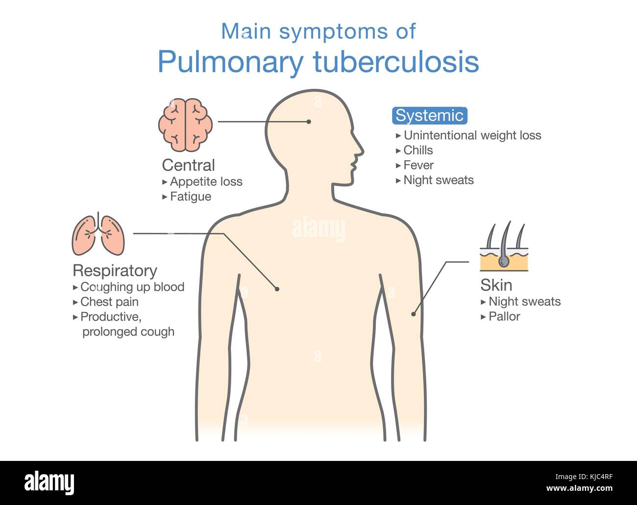 hight resolution of main symptoms of pulmonary tuberculosis patient stock image