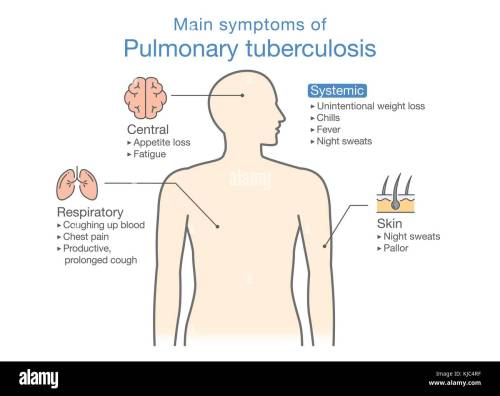 small resolution of main symptoms of pulmonary tuberculosis patient stock image