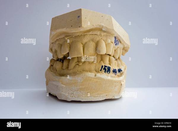 Stone Dental Impression Mold - Year of Clean Water