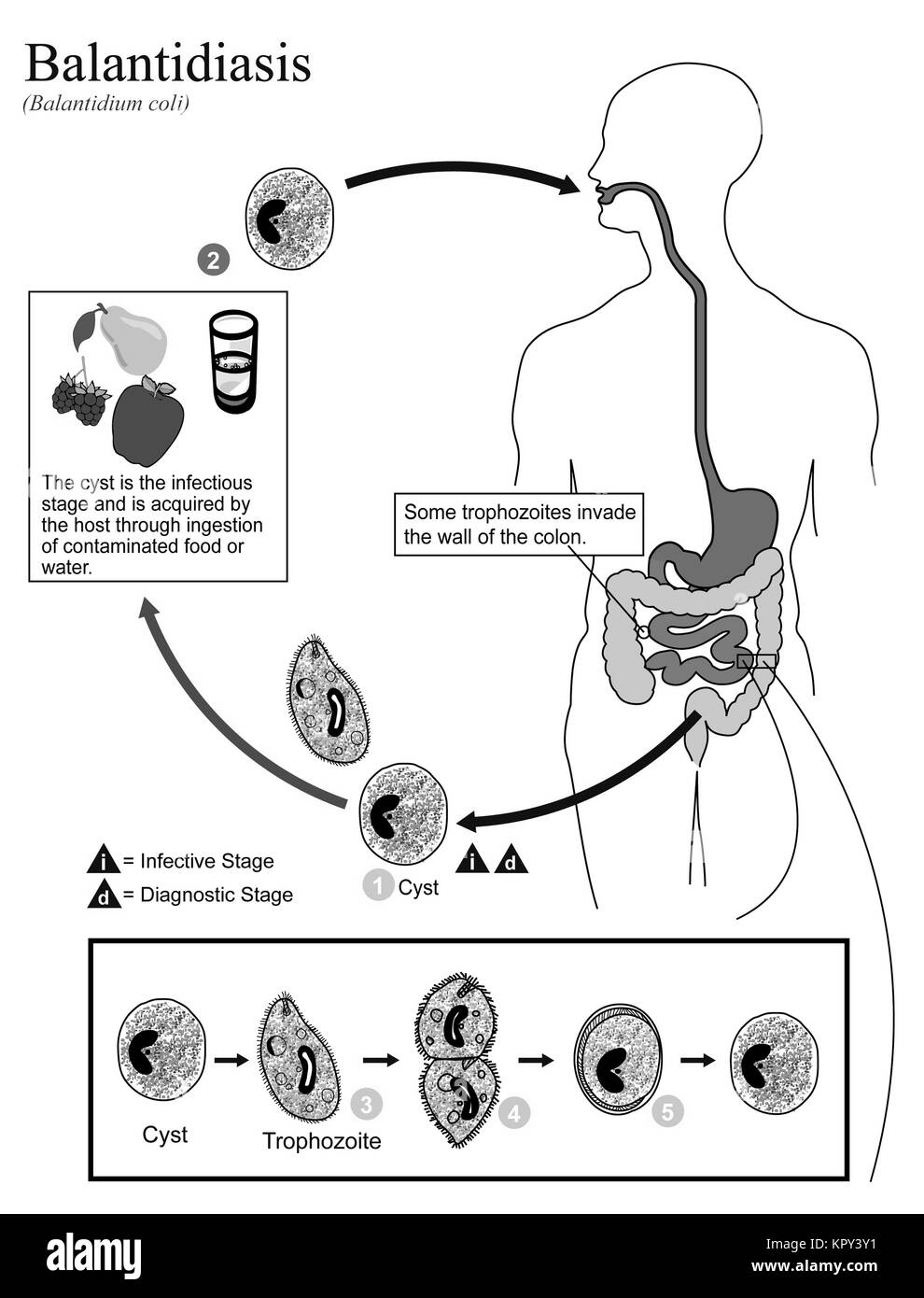 medium resolution of illustrated diagram showing the life cycle of balantidium coli the causal agent of balantidiasis