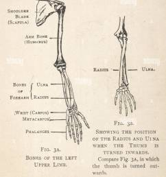 diagrams of the bones of the left arm and hand showing the position of the [ 1082 x 1390 Pixel ]