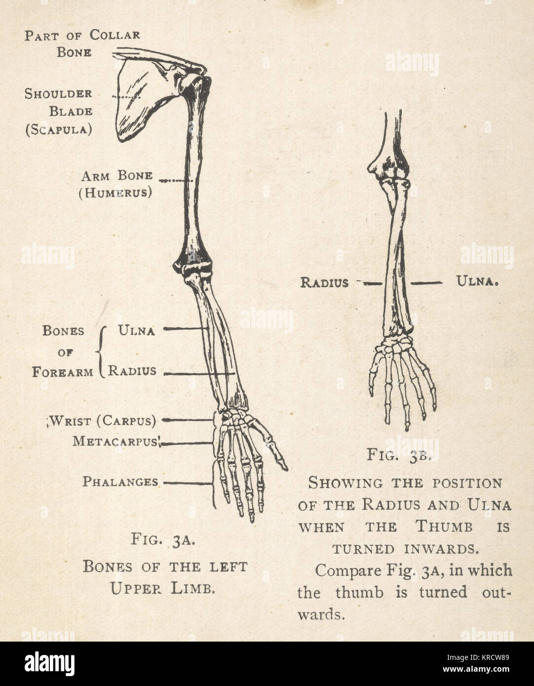 hight resolution of diagrams of the bones of the left arm and hand showing the position of the