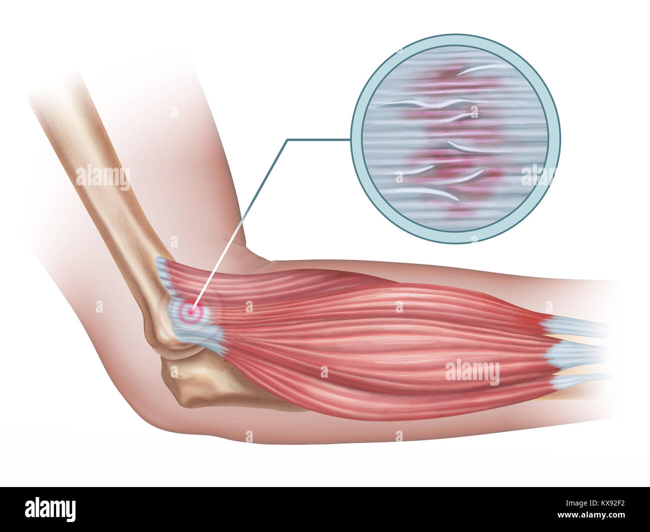 hight resolution of tennis elbow diagram showing a detail of the damaged tendon tissue digital illustration
