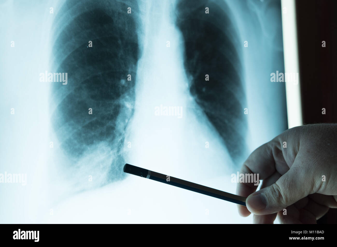 Lung Cancer X Ray Stock Photos Amp Lung Cancer X Ray Stock