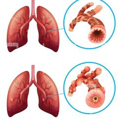 diagram showing lungs with disease illustration stock image [ 1126 x 1390 Pixel ]
