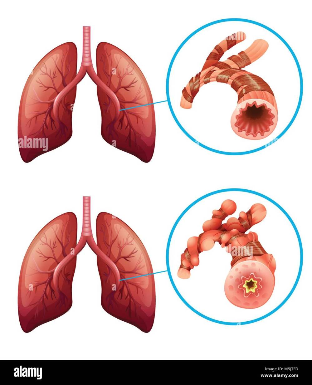 medium resolution of diagram showing lungs with disease illustration stock image