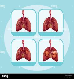 diagram showing different stages of lung cancer illustration [ 1300 x 1345 Pixel ]