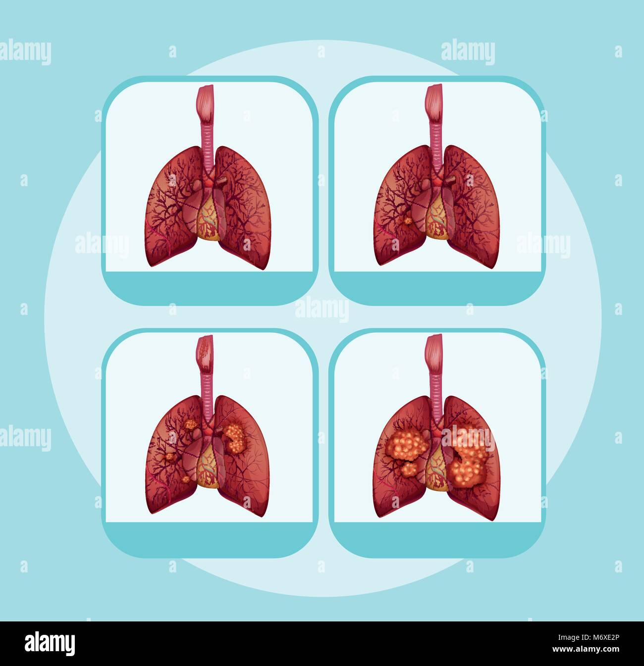 hight resolution of diagram showing different stages of lung cancer illustration