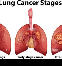 diagram showing lung cancer stages illustration [ 1300 x 816 Pixel ]