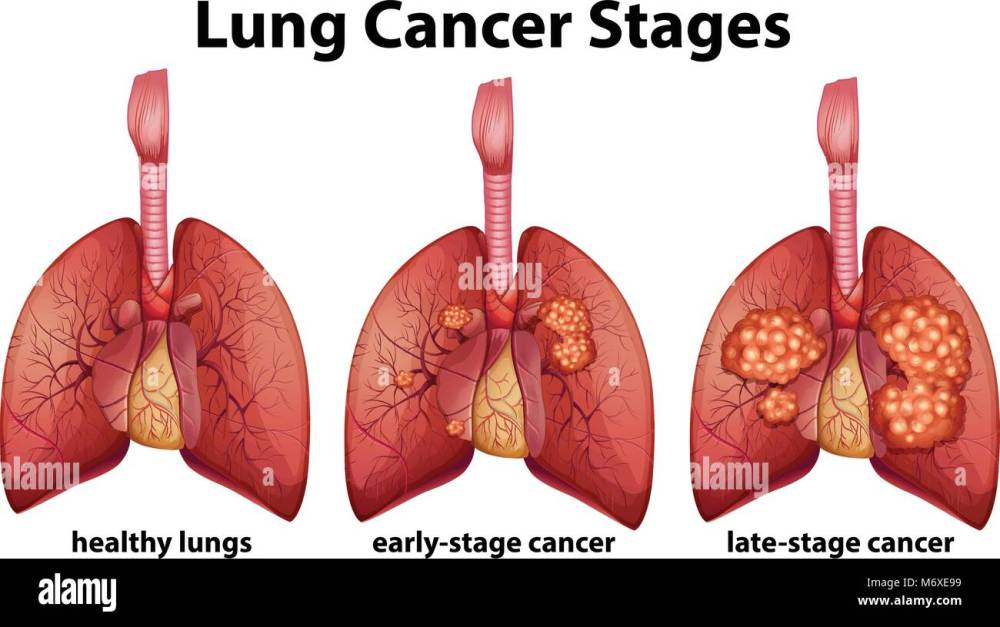 medium resolution of diagram showing lung cancer stages illustration