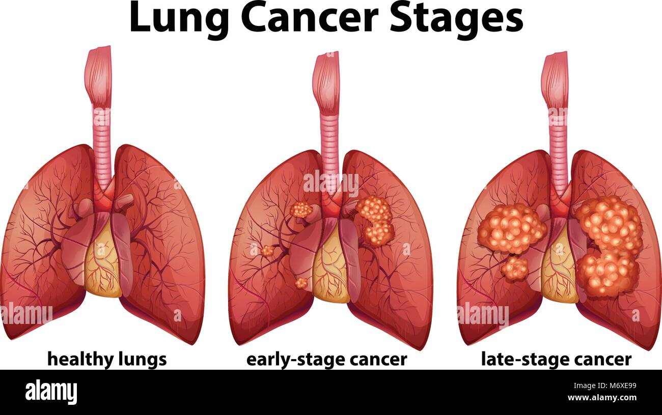 hight resolution of diagram showing lung cancer stages illustration
