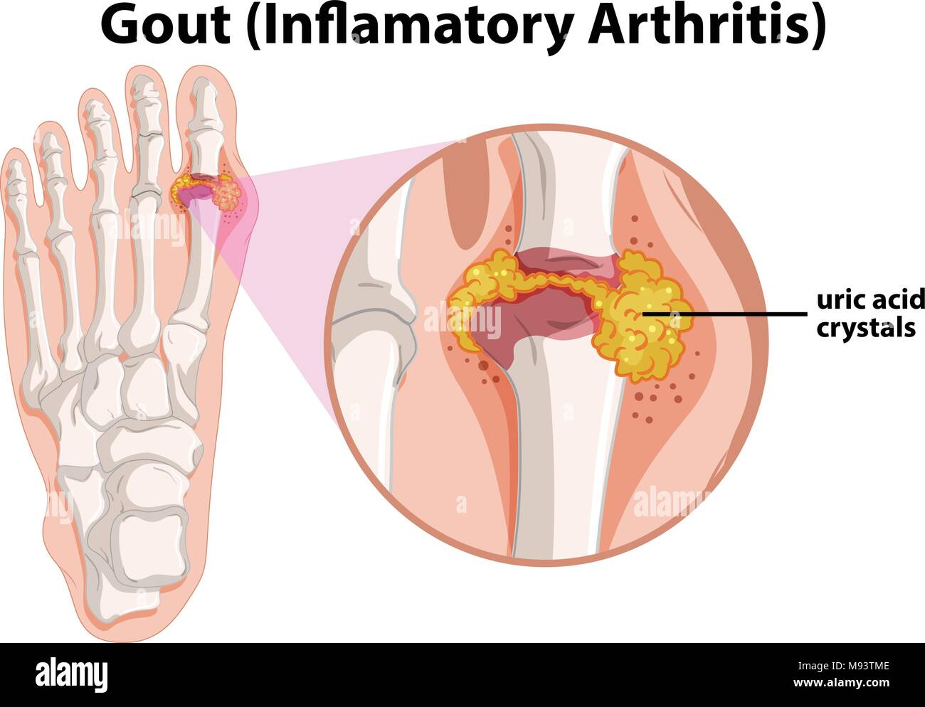 hight resolution of diagram showing gout in human foot illustration stock image