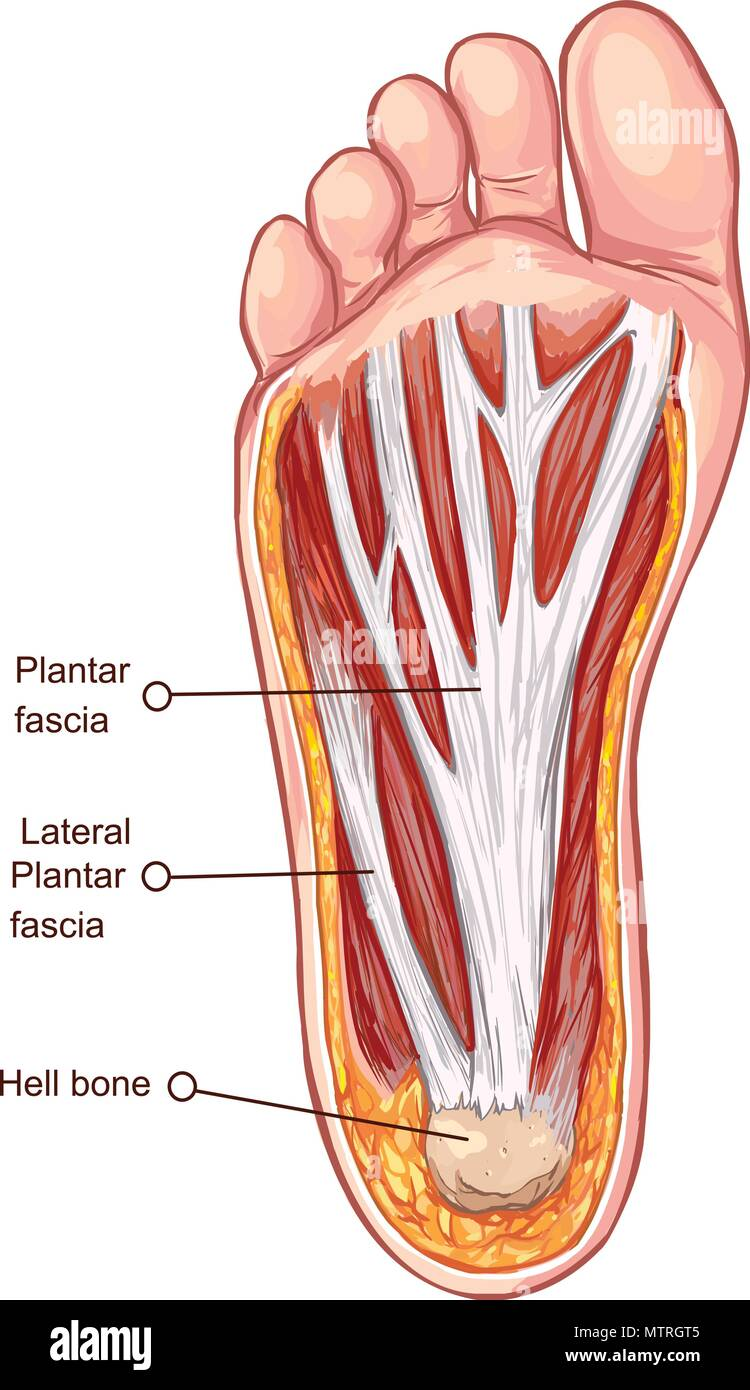 hight resolution of vector illustration of a plantar fascitis illustration stock image