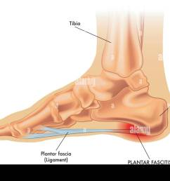 an vector medical illustration of the anatomy of a foot with the symptoms of plantar fasciitis [ 1300 x 972 Pixel ]