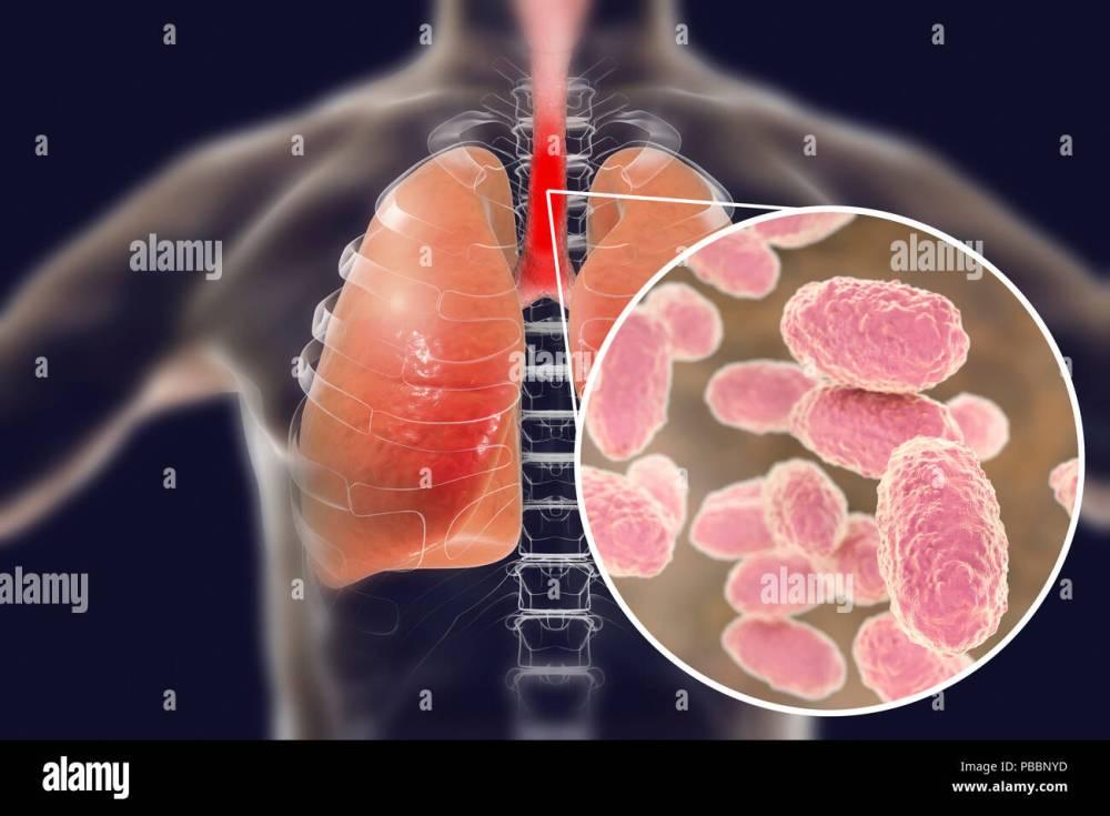 medium resolution of pertussis cause diagram wiring diagram info pertussis cause diagram