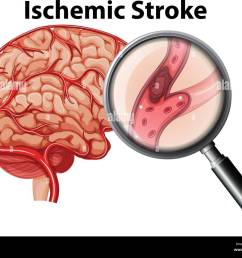 magnified ischemic stroke concept illustration stock image [ 1300 x 1062 Pixel ]