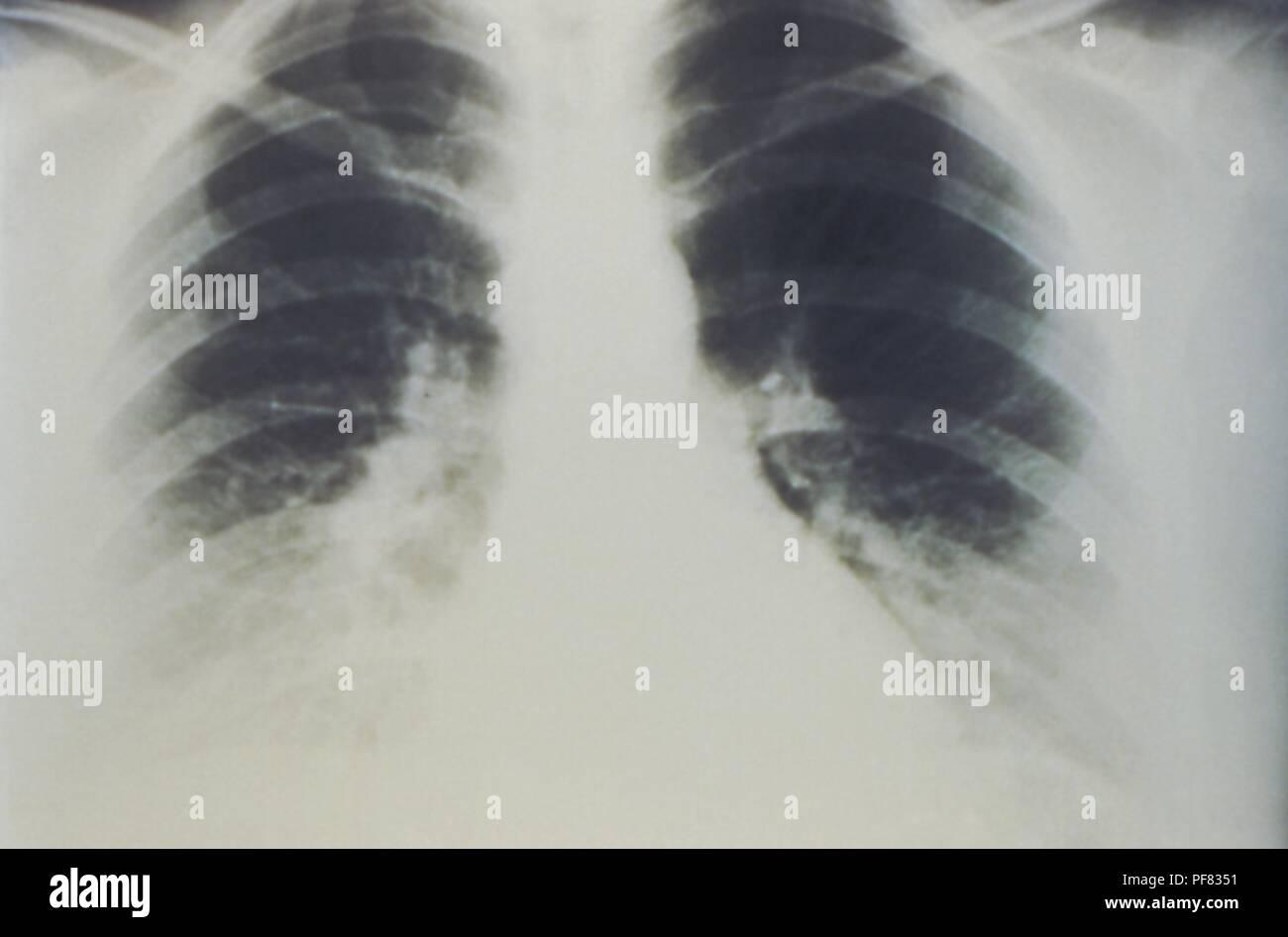 Hantavirus Pulmonary Syndrome Stock Photos & Hantavirus Pulmonary ...