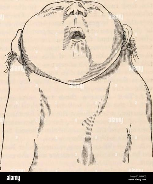 small resolution of the cyclop dia of anatomy and physiology anatomy physiology zoology 954 teratology