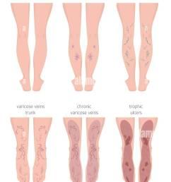 vascular diseases varicose veins symptoms treatment icon set medical infographic design vector [ 840 x 1390 Pixel ]