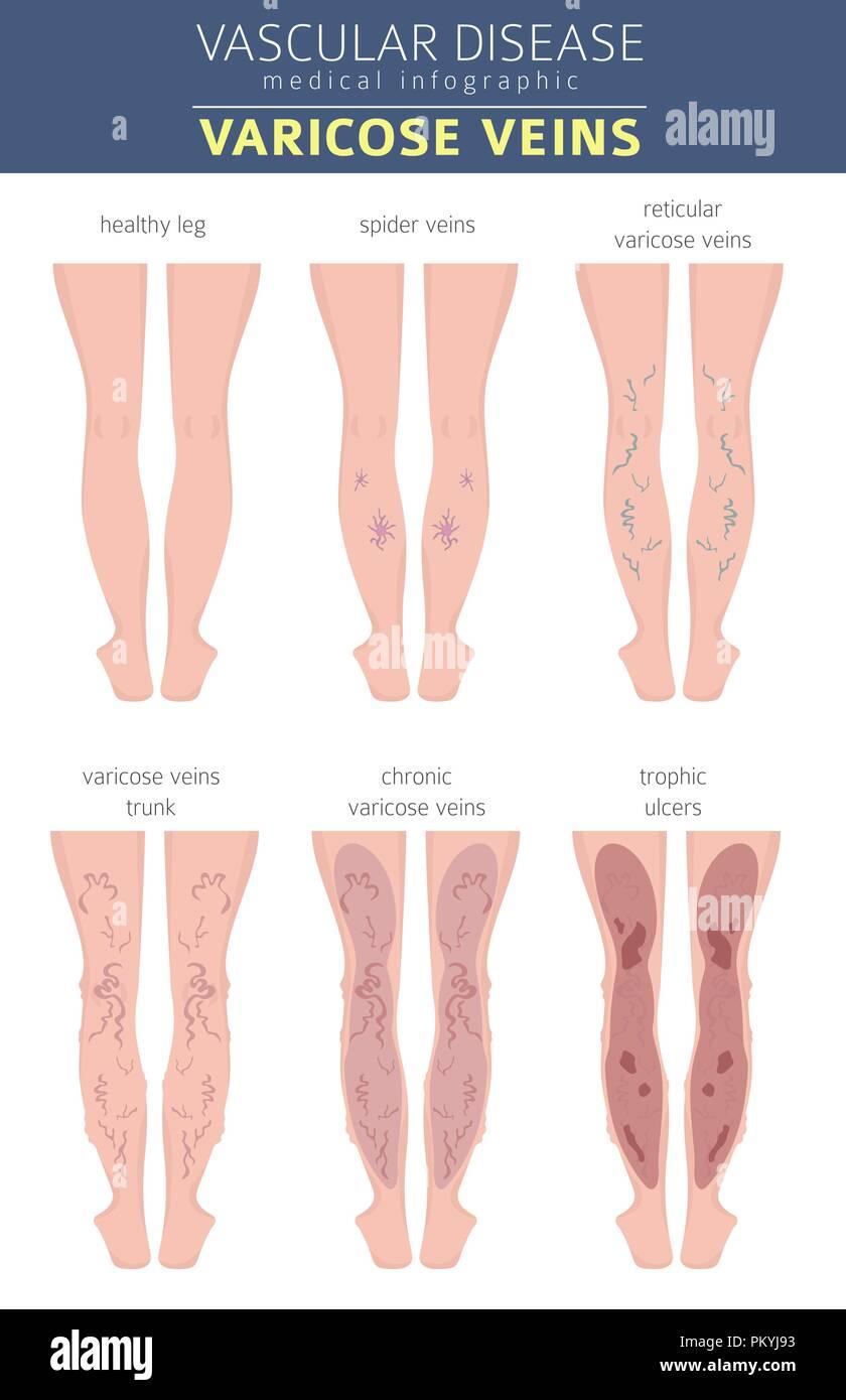medium resolution of vascular diseases varicose veins symptoms treatment icon set medical infographic design vector
