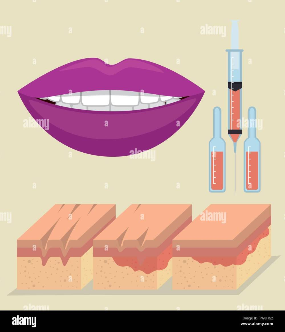 medium resolution of layers of skin with botox injection