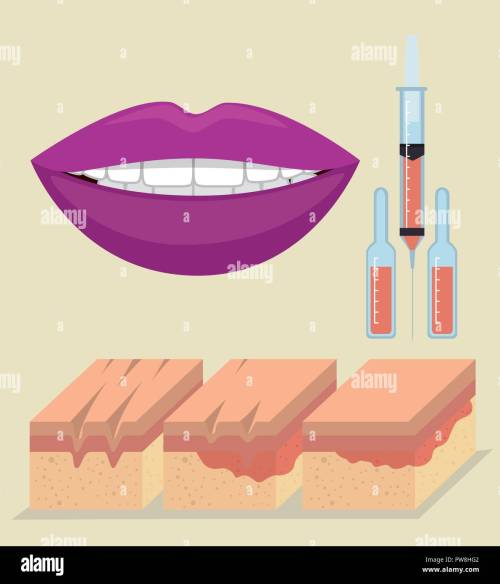 small resolution of layers of skin with botox injection