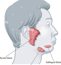 vector illustration diagram of a face in profile noting the salivary glands and their locations  [ 1044 x 1390 Pixel ]