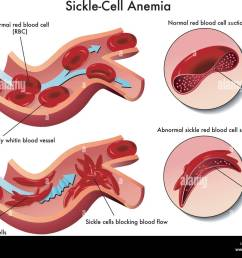 medical illustration of the effects of sickle cell anemia stock image [ 1300 x 1050 Pixel ]