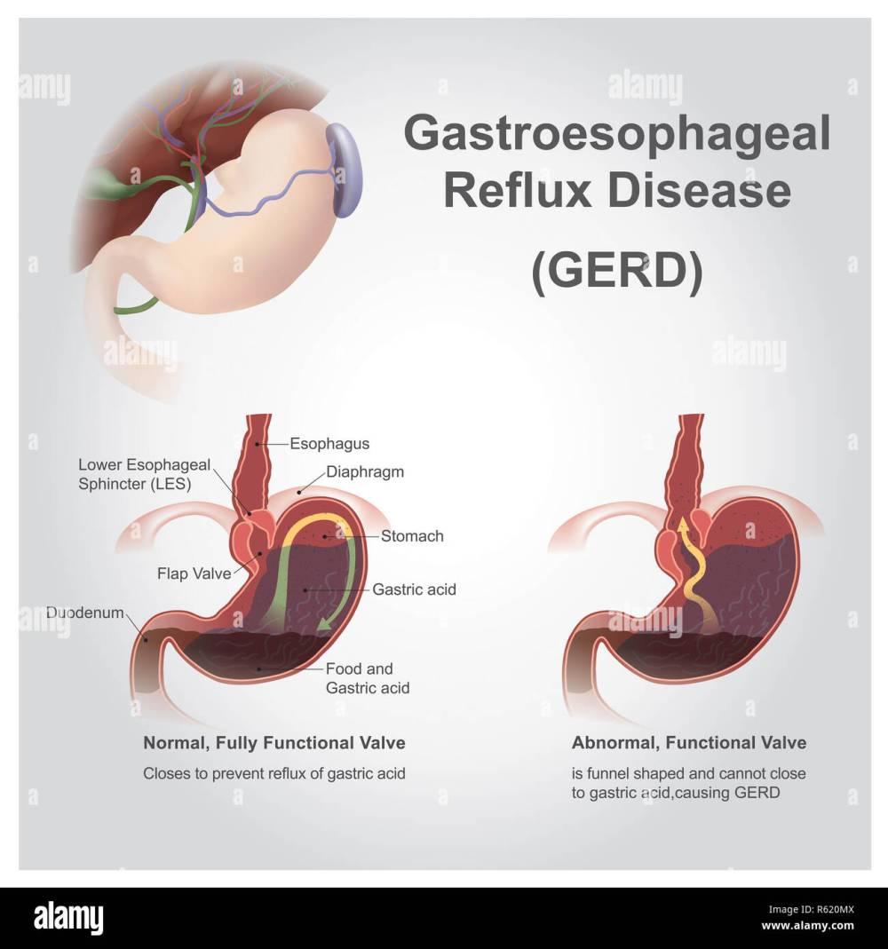 medium resolution of gastro reflux stock image