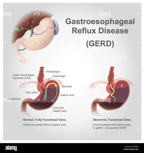 small resolution of gastro reflux stock image