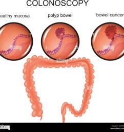 vector illustration of a colon polyp and cancer stock image [ 1300 x 1271 Pixel ]