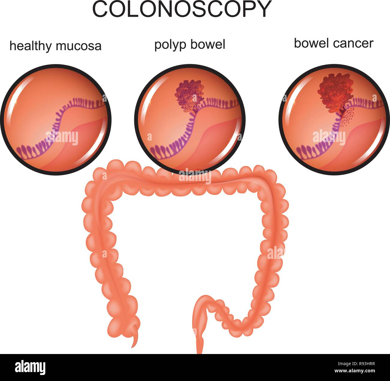 hight resolution of vector illustration of a colon polyp and cancer stock image