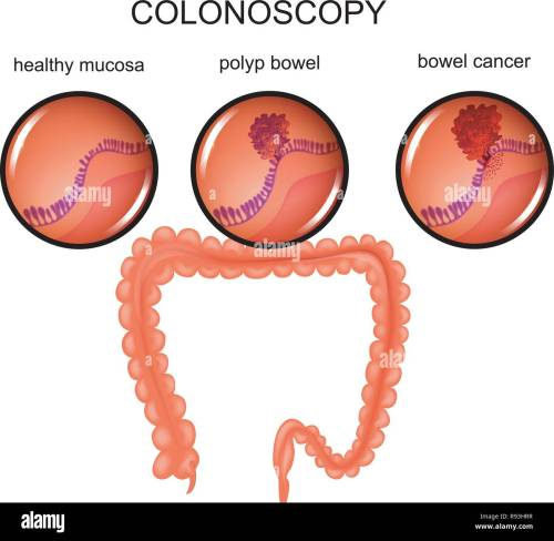 small resolution of vector illustration of a colon polyp and cancer stock image