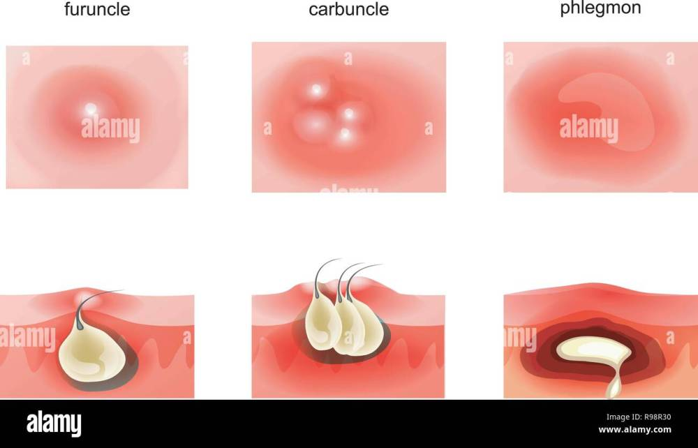 medium resolution of vector illustration of suppurative diseases of the skin stock image