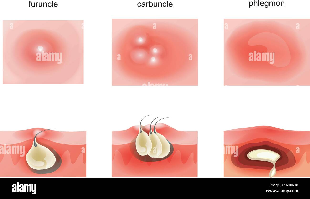 hight resolution of vector illustration of suppurative diseases of the skin stock image