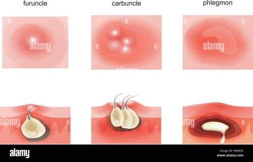 small resolution of vector illustration of suppurative diseases of the skin stock image