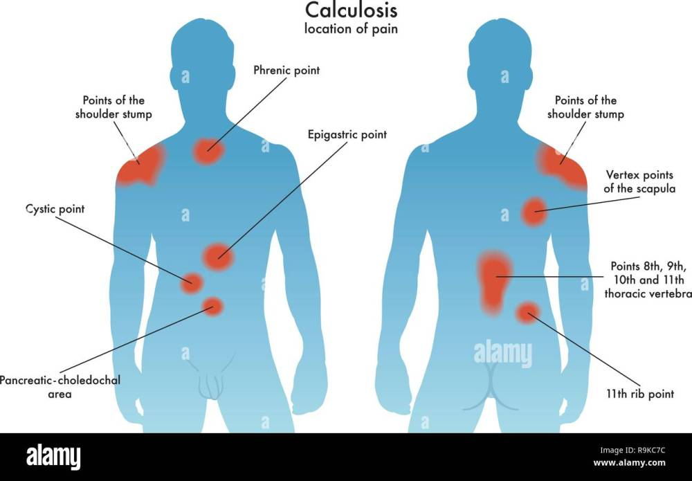 medium resolution of medical illustration of the most frequent painful points in the various forms of calculosis stock