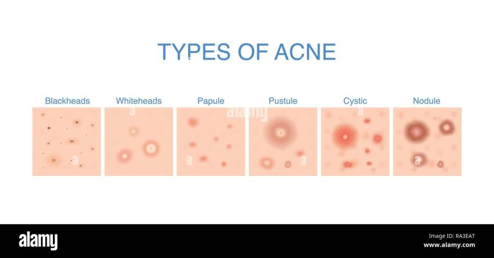 medium resolution of types of acne diagram for skin problems content stock image