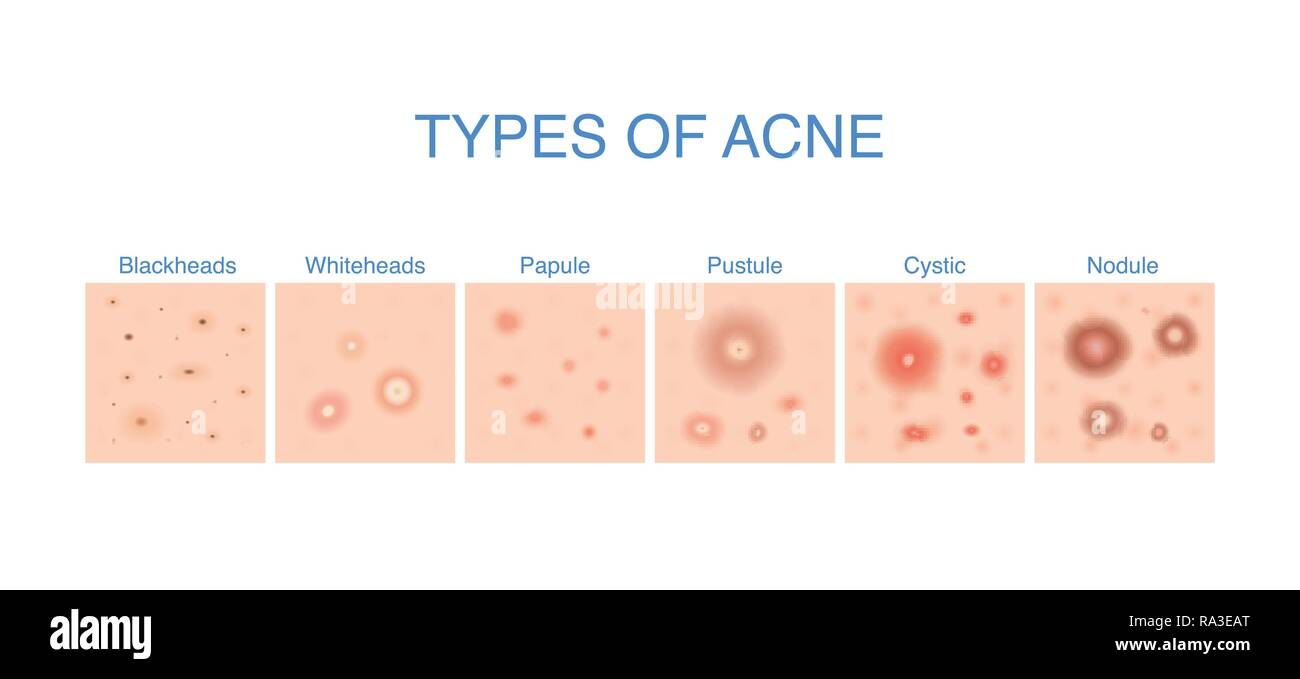 hight resolution of types of acne diagram for skin problems content stock image