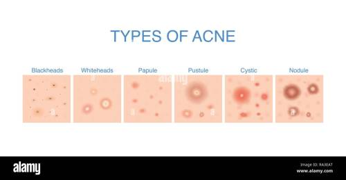 small resolution of types of acne diagram for skin problems content stock image