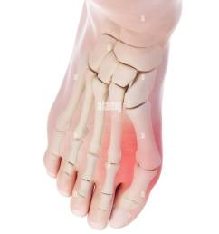 illustration of a bunion stock image [ 975 x 1390 Pixel ]