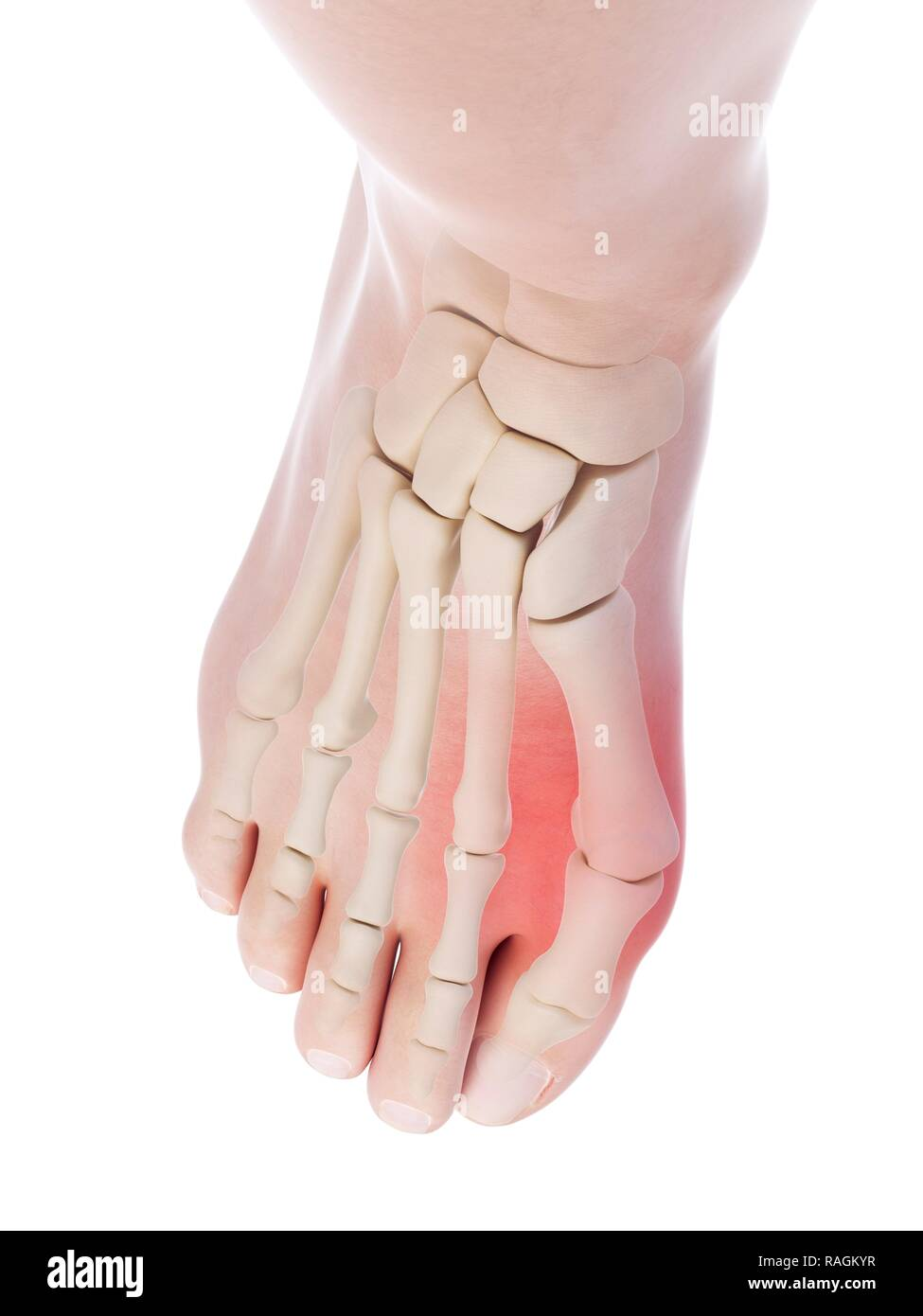 hight resolution of illustration of a bunion stock image