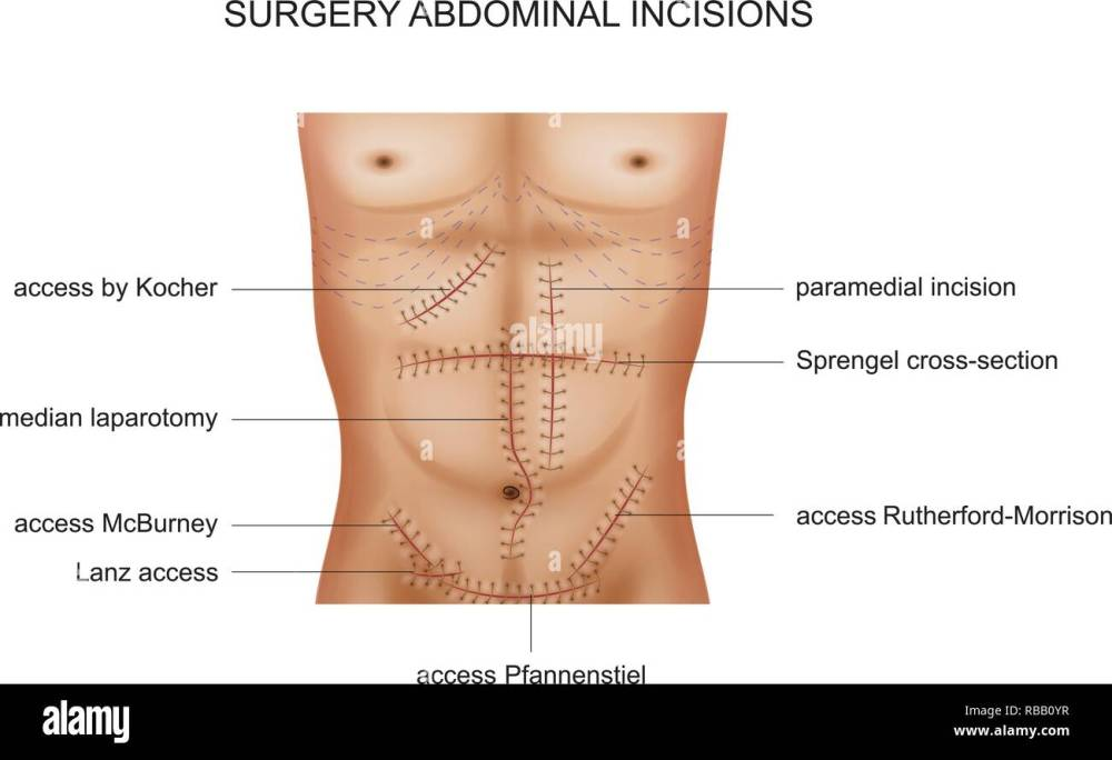 medium resolution of vector illustration of surgical incisions of the abdominal cavity stock image