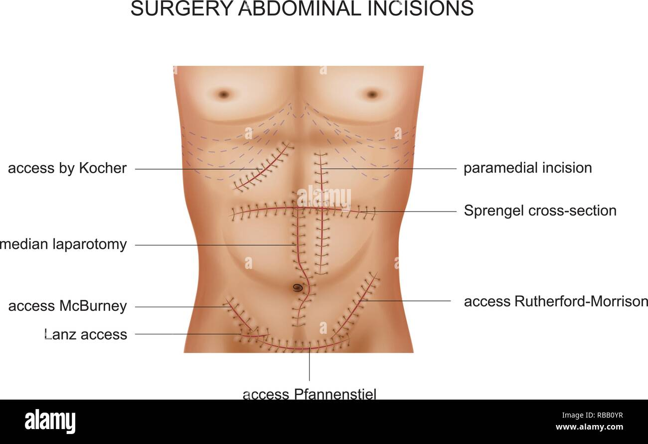 hight resolution of vector illustration of surgical incisions of the abdominal cavity stock image