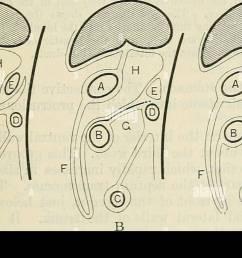 the mesentery rectum mesentery of descending colon fig 974  [ 1300 x 863 Pixel ]