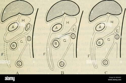 small resolution of the mesentery rectum mesentery of descending colon fig 974
