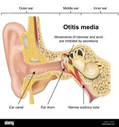 otitis media ear disease 3d medical vector illustration on white background stock image [ 1300 x 1390 Pixel ]